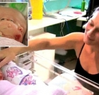 "Sydney's ""miracle"" conjoined twins Faith and Hope conceived with extraordinary condition ""disrosopus"""